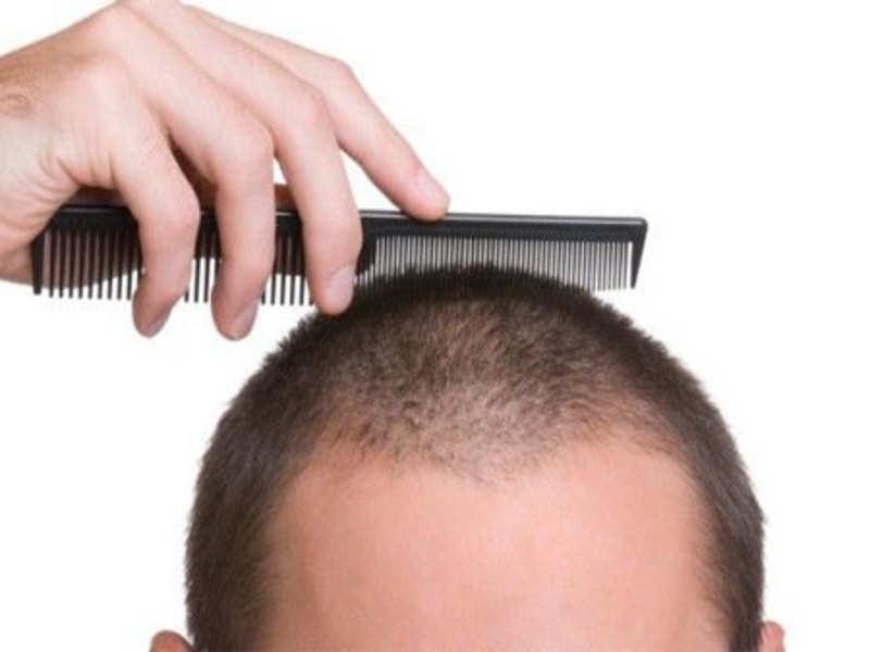 Damaged whipped cream Hair Loss