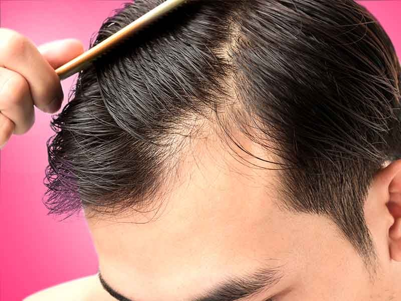 The simplest way to Safely Cope With Hair Thinning