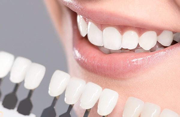 Understanding everything you need to know about the tooth filling