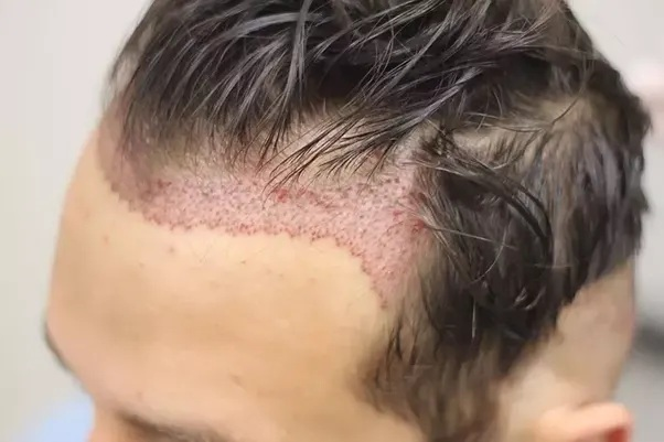 Common myths related to Hair Transplant