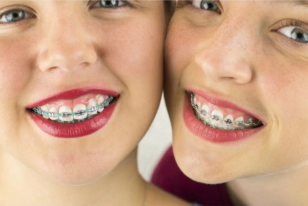 What Are The Reasons Behind Wearing Braces?