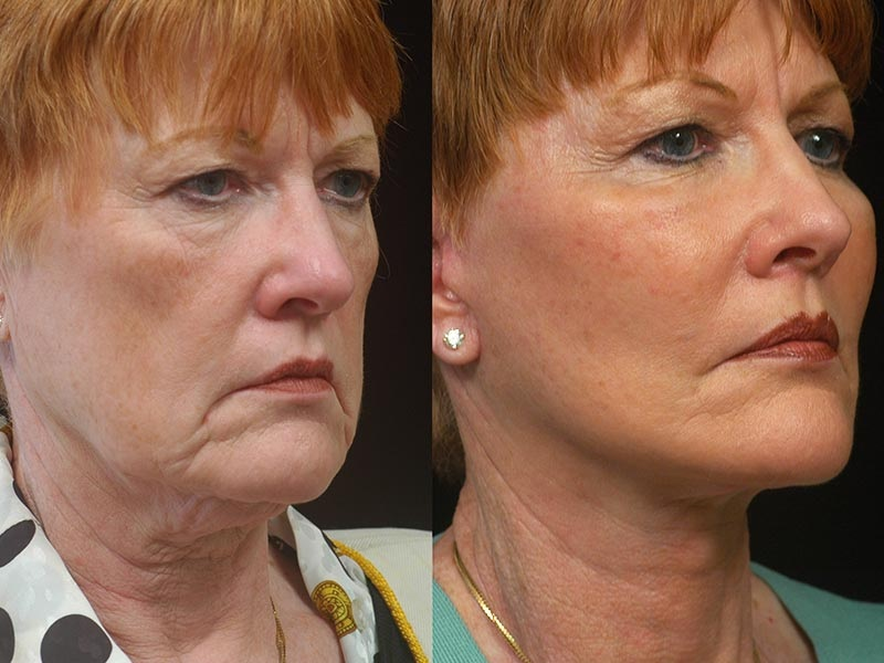 Cheek Augmentation And Why It Is Done