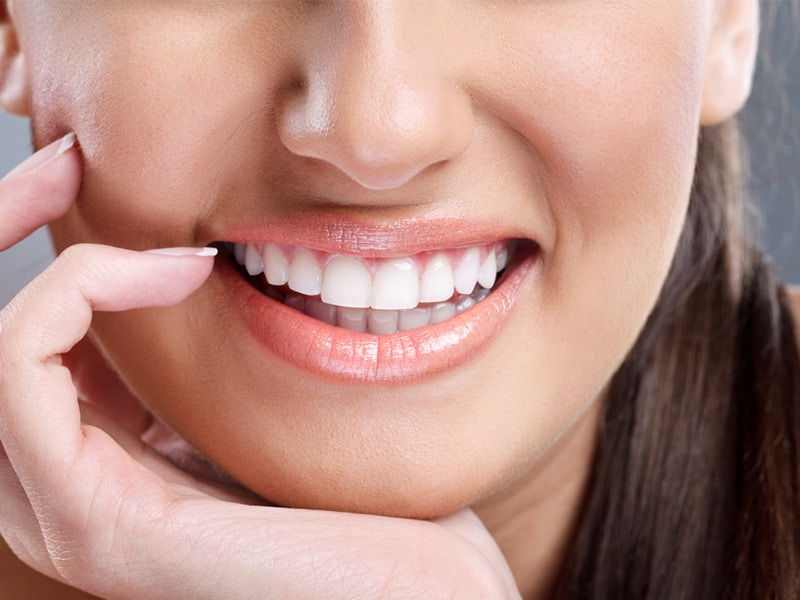 Teeth Bonding Rates High Satisfaction With Dental Patients