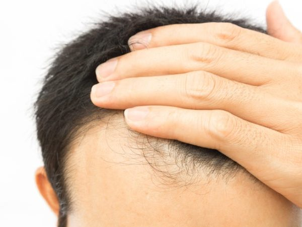 Hair Loss Treatments: Which Ones Really Work?