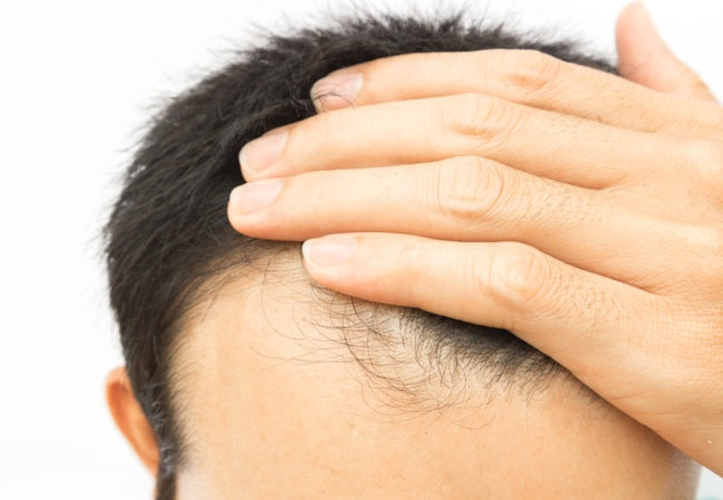 MALE PATTERN HAIR LOSS IS A GROWING PROBLEM FOR TODAY'S GENERATION