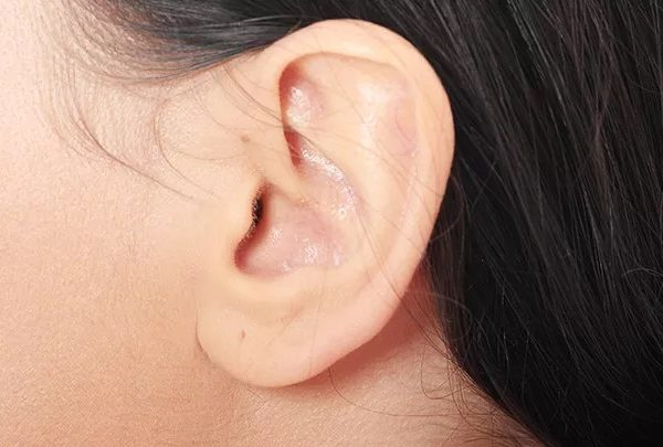 Repair your split earlobe quickly and safely with pleasing surgery