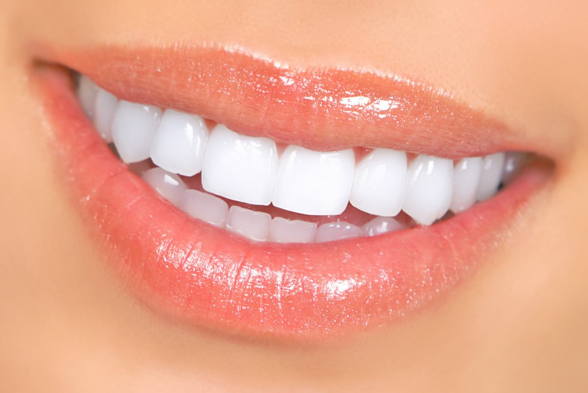 Homemade Teeth Whitening Remedies That Will Give You Quick Results