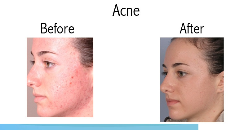 SILKPEEL FACIAL FOR MILD ACNE