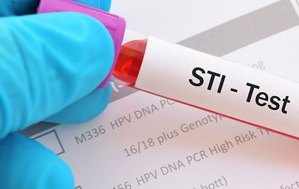 Treatment options for STIs