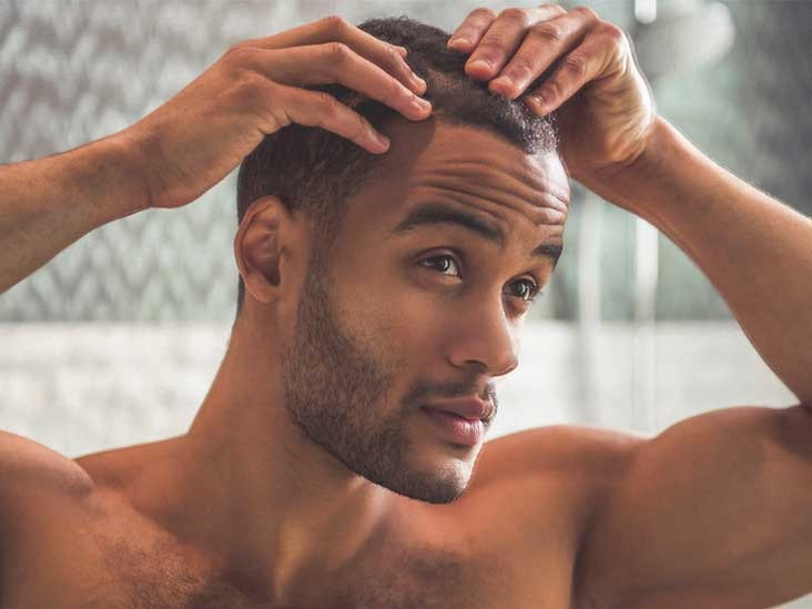 Minoxidil Liquid or Foam: Which One Should You Use?