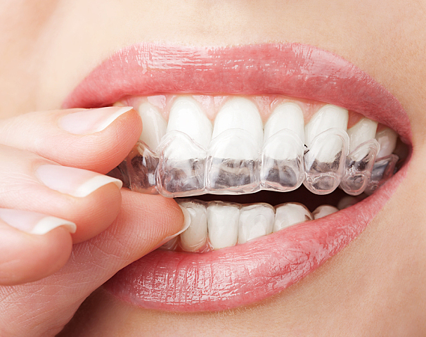 Keeping Your Teeth white: The best Choices for Your Now