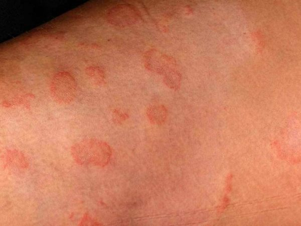 Is Ringworm skin infection caused by a parasite?