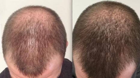 Can Ketoconazole Be Used for Hair Regrowth?