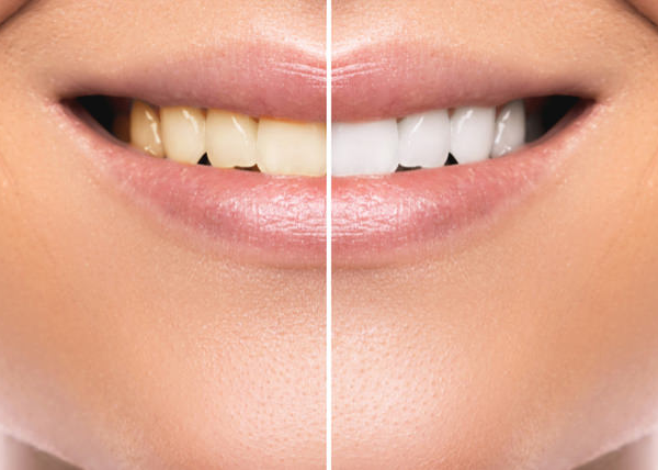 Teeth Whitening for Kids and Teens