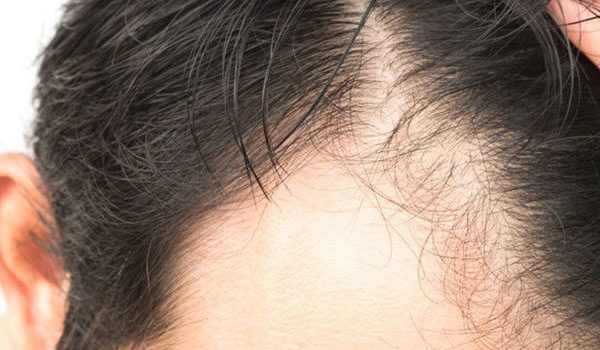 Postpartum Hair Loss and How to Deal With It