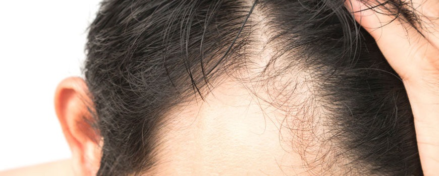 How do you use minoxidil on your scalp?
