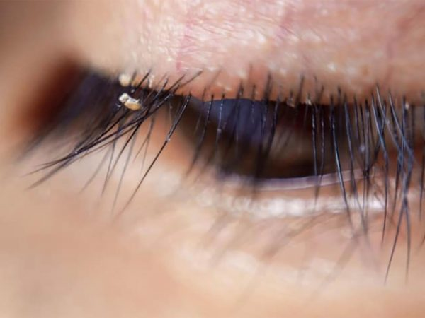 Itching and redness in eyes can be the symptoms of eyelash lice: