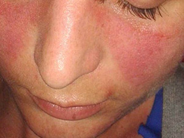 Facial Skin Irritations and How To Treat Them